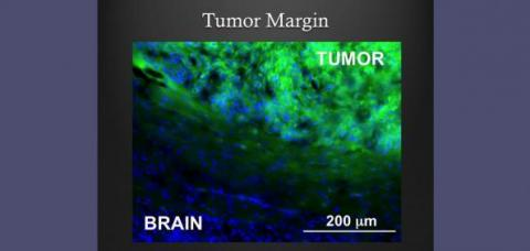 tumor_margin